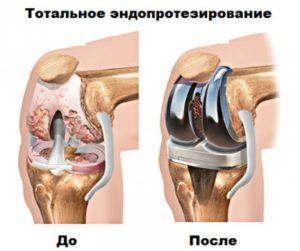 Хромота коленного сустава - Все про суставы