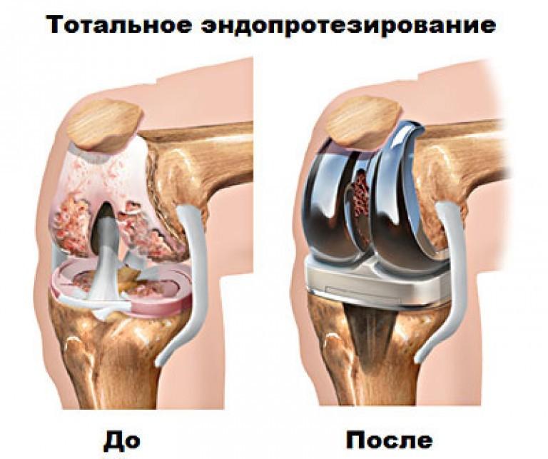 Протезирование коленного сустава сколько заживает витамины для костей и суставов купить