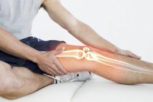 Изображение - Пластырь при артрозе коленного сустава 1.50626529927e12-300x200