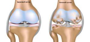 Артротомия коленного сустава вскрытие и обнажение колена