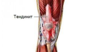 Как растянуть сухожилия под коленями