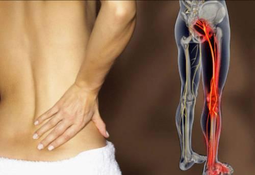 Острая боль от ягодицы до колена