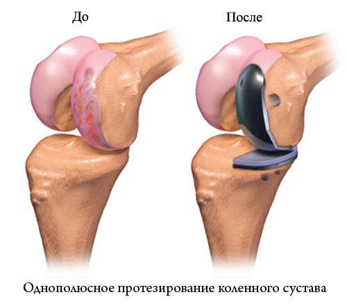 Как оформить квоту на операцию по замене коленного сустава суставы хрустят народная медицина