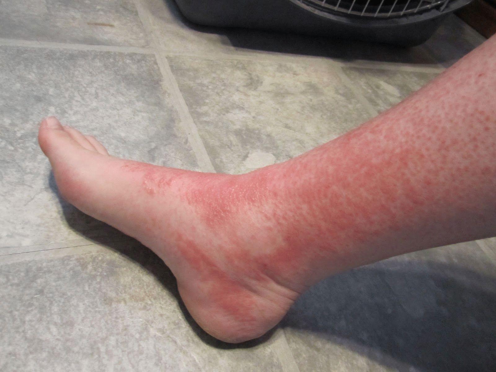 Покраснение на ногах без причины
