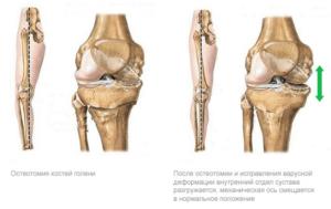 Особенности артротомии остеомии и синэквэктомии коленного сустава