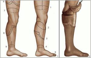 Группа инвалидности при ампутации ноги выше колена