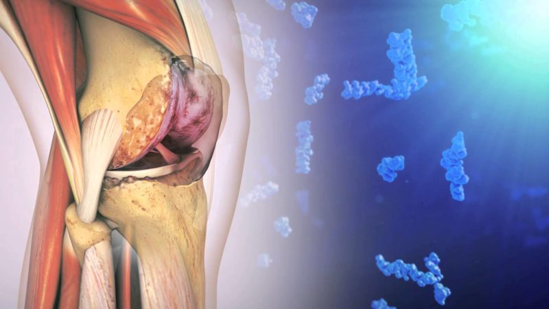 Синовиальная жидкость в колене лечение народными средствами