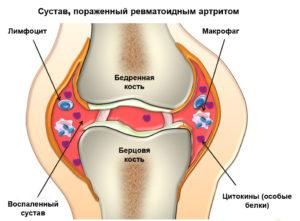 Изображение - Народное средство от опухания коленного сустава 5614da4b2c0ee-1-300x221