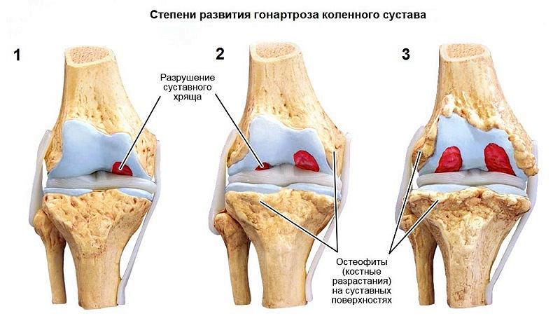 Физическая реабилитация при контрактурах коленного сустава 51