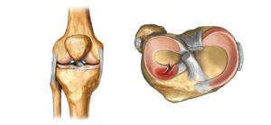 Санационно диагностическая артроскопия коленного сустава