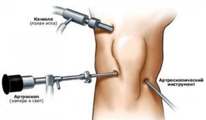 Как проходит артроскопия коленного сустава