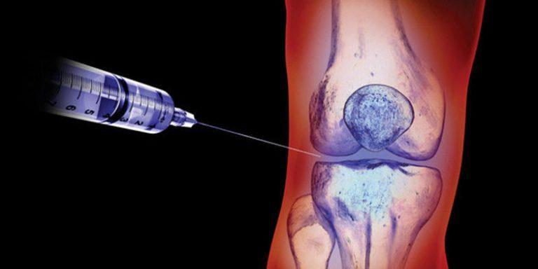 Блокада дипроспаном коленного и плечевого суставов