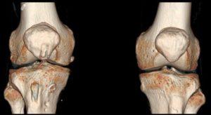МРТ или КТ коленного сустава, что лучше сделать?