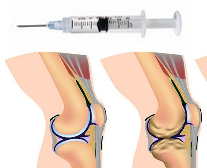 Лечение артрита коленного сустава гиалуроновой кислотой фото
