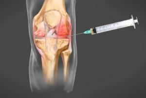Отек коленного сустава без боли: симптомы, причины и лечение у женщин в домашних условиях