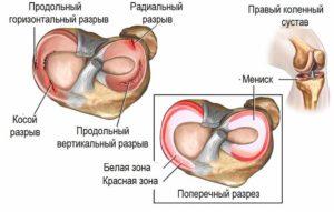 Мениски коленного сустава анатомия