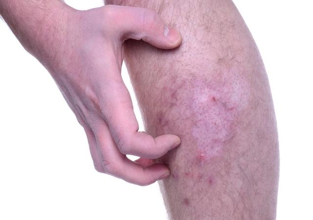 чешется колено при артрозе