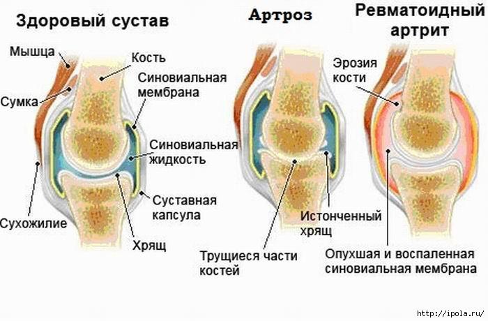 Восстановление жидкости в коленном суставе признаки боли сустава