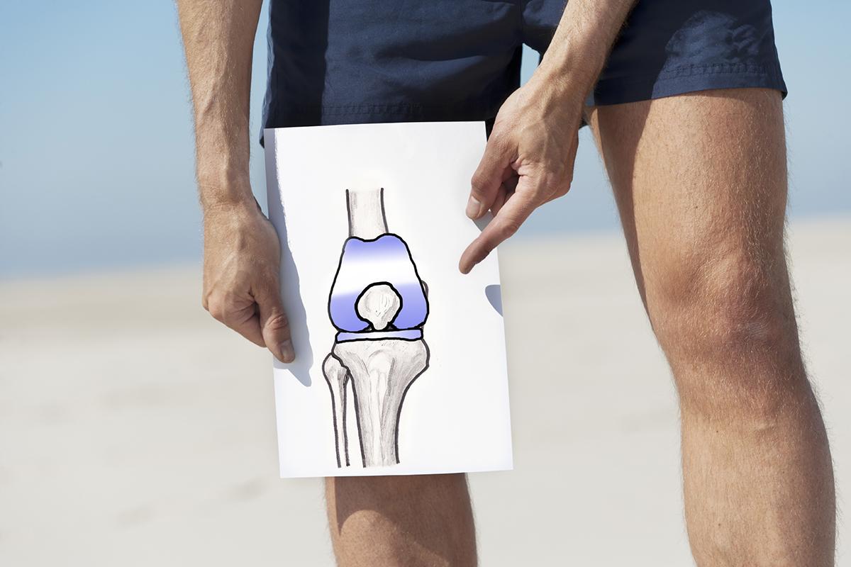 Сколько будет стоить операция по замене коленного сустава