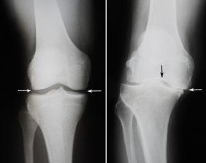 Как получить квоту на протезирование коленного сустава