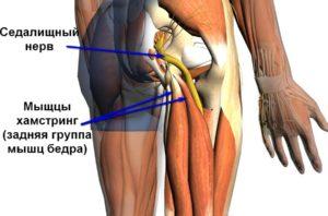 Болит нога от ягодицы до колена с внешней стороны