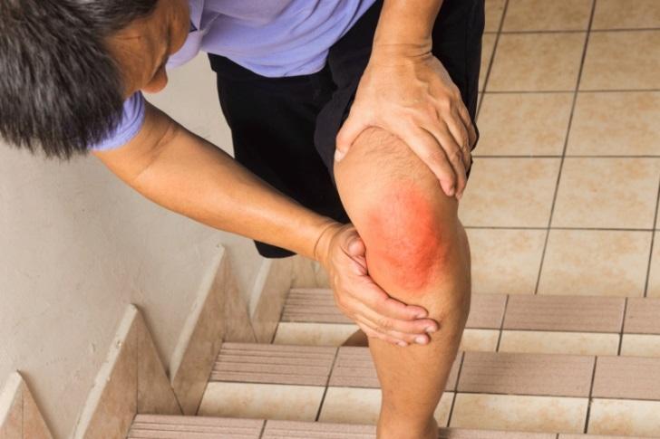 Что делать если защемило нерв в коленном суставе