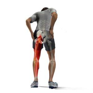 Болит задняя часть ноги от поясницы до колена thumbnail