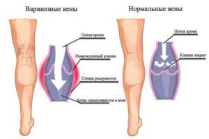 Изображение - Спазм мышцы тазобедренного сустава content_varikoz1_1-300x200