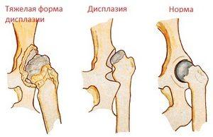 Изображение - После травмы колена болит тазобедренный сустав displaziya-tazobedrennyh-sustavov-2-300x194