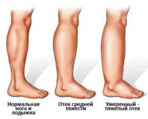 Болит левая нога от бедра до стопы лечение народными средствами