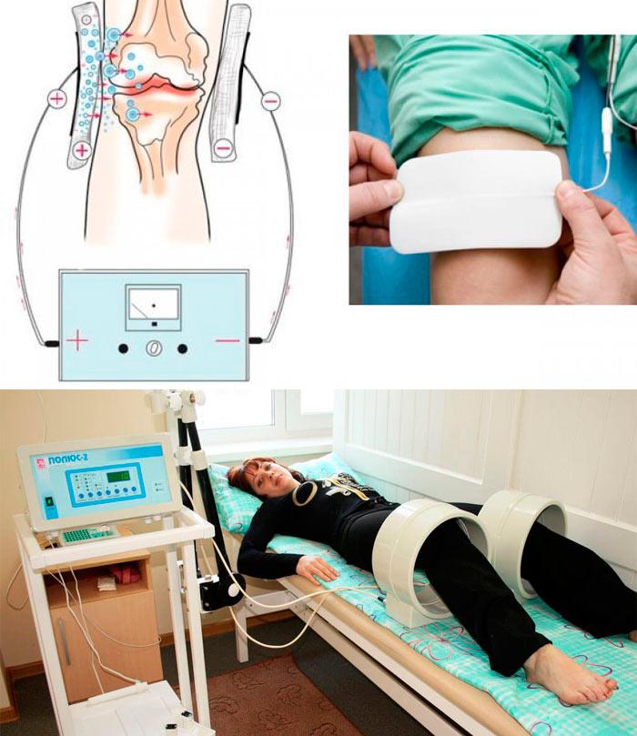 Лечение магнитом коленных суставов как размять сустав после травмы