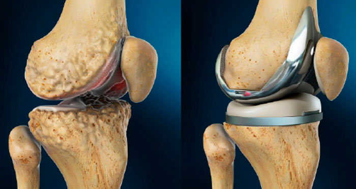 Замена коленного сустава реабилитация после операции отзывы