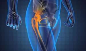 Болят суставы коленные тазобедренные thumbnail