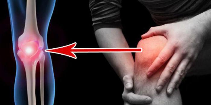 Как лечить ушиб колена, последствия и симптомы ушиба коленного сустава