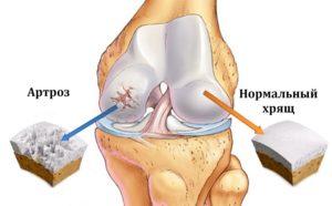 Мясников об артрозе коленных суставов
