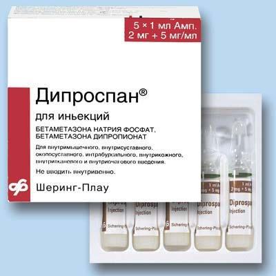 Дипроспан отзывы при артрозе