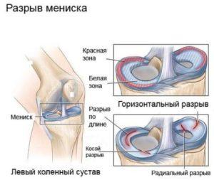 Болит колено ниже чашечки слева