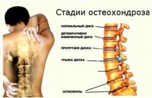 Болит поясница колени суставы