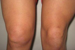 Изображение - Отекают выше колена сустав в норме otek_kolena-300x199