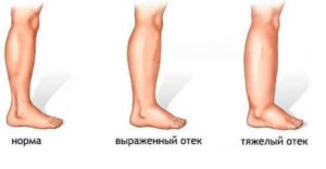 Почему опухает правая нога ниже колена