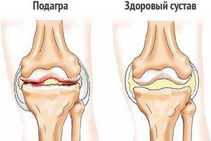 Артралгия коленного сустава код по мкб 10 народные средства для снижения отека в коленном суставе голеностопном суставе