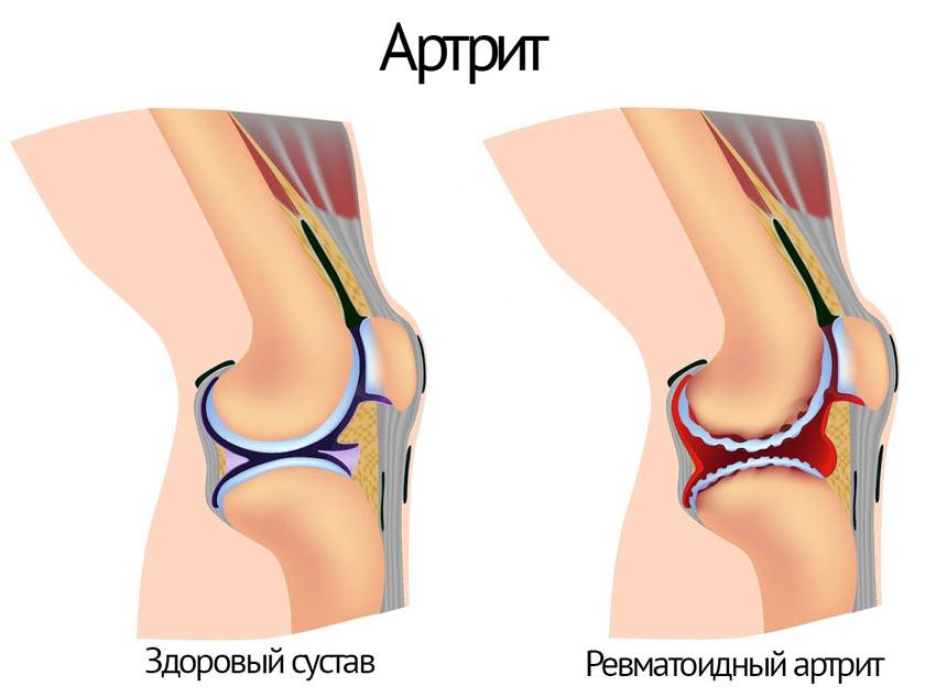 Полезно ли при артрите коленного сустава фото