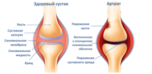 Доктор мясников об артрозе коленных суставов
