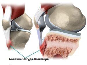 почему немеет колена и болит