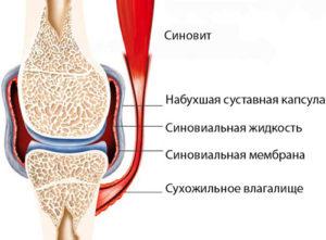 Изображение - Лапароскопия коленного сустава simptomyilecheniesinovita1-300x221