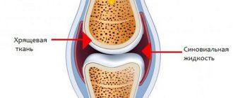 Восстановление жидкости в коленном суставе против боли в суставах дикуль