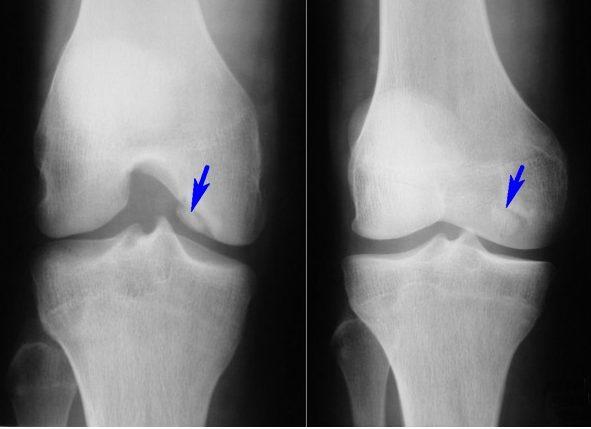 Сужение суставной щели коленного сустава лечение лечение суставов народными сре