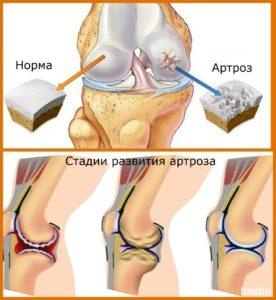 Изображение - Ферматрон после артроскопии коленного сустава stadii-artroza-norma-276x300