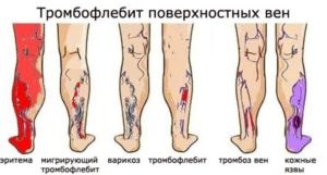 Наколенники для фиксации коленного сустава обзор фиксаторов
