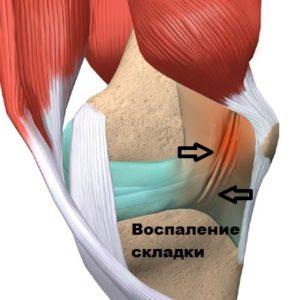 Изображение - Артроскопия коленного сустава восстановление отзывы vospalennaya-mediopatellyarnaya-skladka-300x300